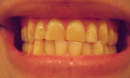 Why My Teeth Are Turning Yellow & Stained?