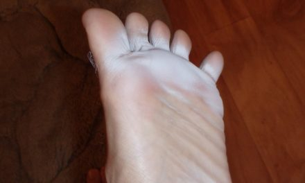 How to Get Rid Of Foot Fungus – Home Remedies