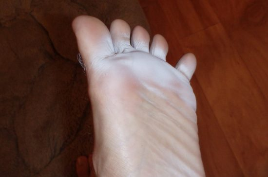 How to Get Rid Of Foot Fungus