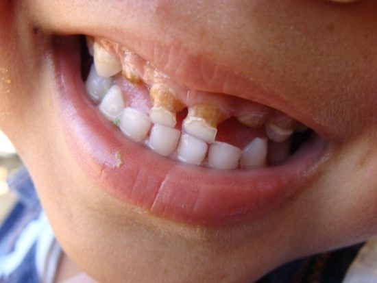 Tooth Decay in Toddlers 2